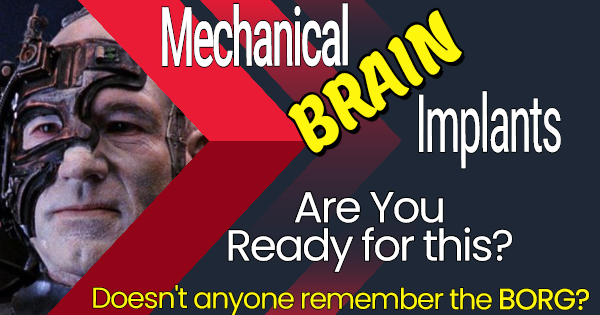 READY FOR MECHANICAL IMPLANTS TO BE PUT INSIDE YOUR BRAIN?